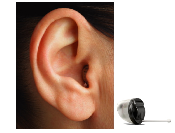 Finding the Best Hearing Aid Company – A Guide to Choosing
