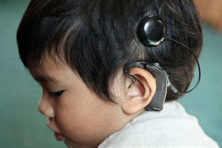 Process of Getting Cochlear Implants