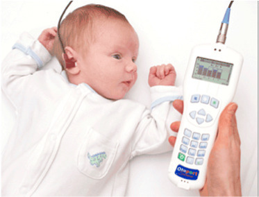 BERA Hearing test on babies