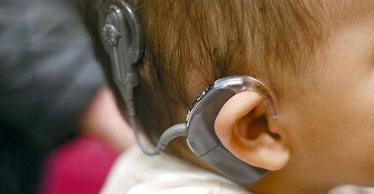 Hearing Aids Vs Cochlear Implants – Understanding How They Are Different