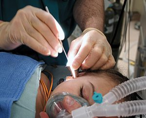 cochlear implants surgery