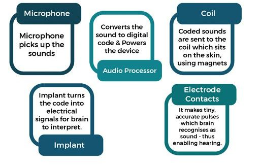cochlear-implants-part-how-it-works-2