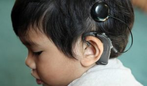 rehabilitation-after-cochlear-implants