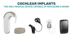 cochlear-page-featured
